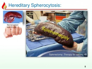 Splenomegaly