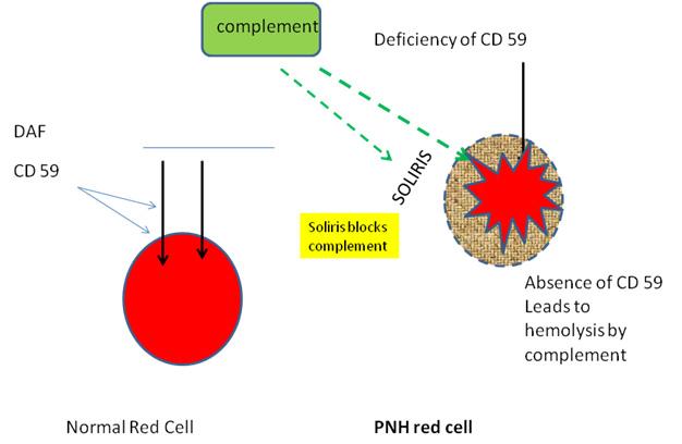 Paroxysmal Nocturnal Hemoglobinuria | Ask Hematologist