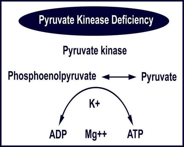 Pyruvate Kinase Deficiency