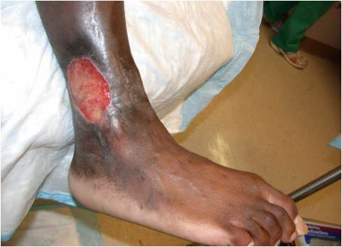 Sickle Cell Ulcer
