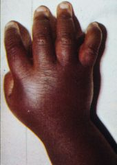 dactylitis-sickle cell disease