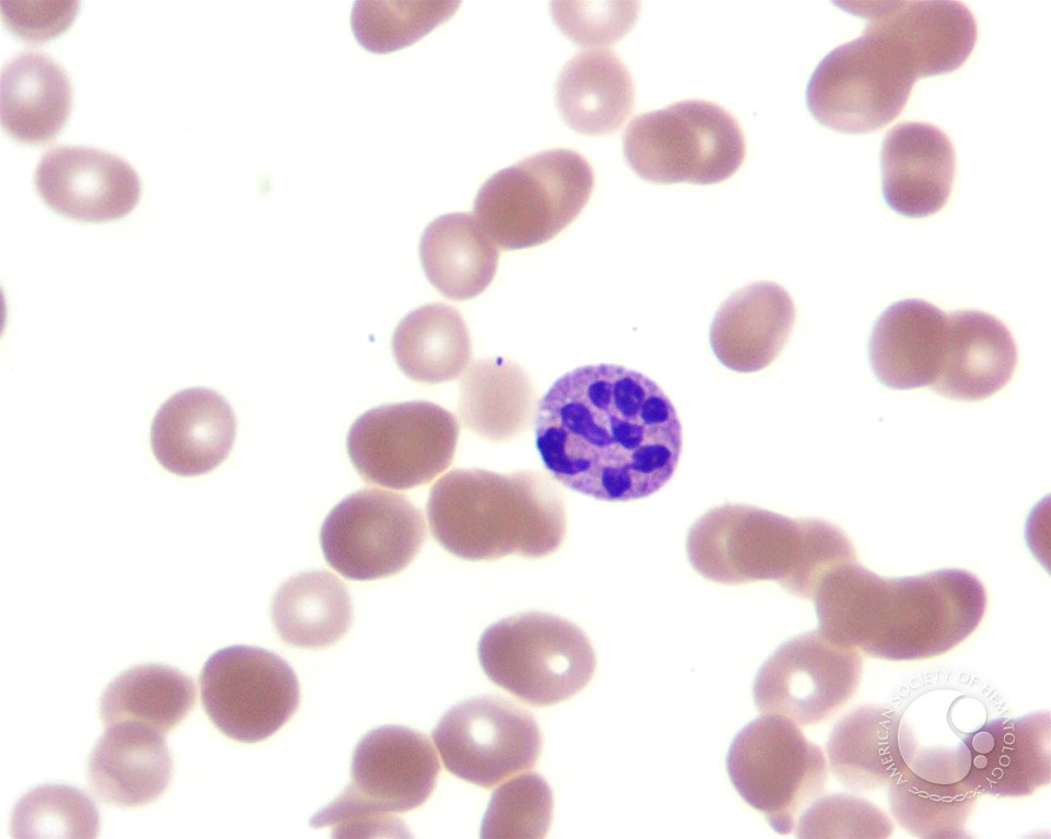 hypersegmented neutrophil