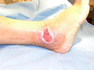 leg ulcer in hemolytic anemia