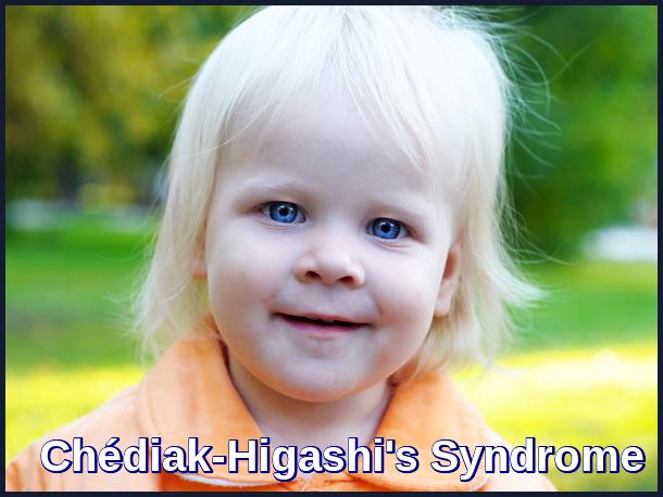 Chédiak-Higashi's Syndrome