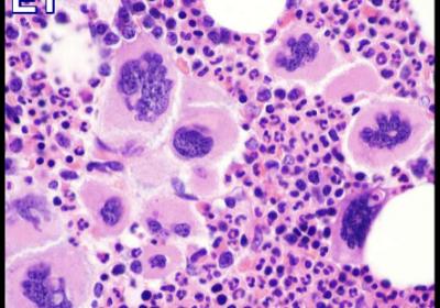 Essential Thrombocythemia-BM