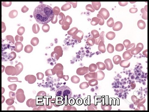 Essential Thrombocythemia-Blood Film