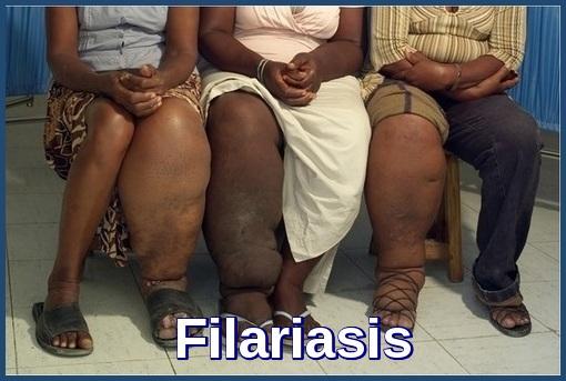 Lymphatic Filariasis-Elephantiasis