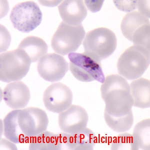 Plasmodium Falciparum Gametocyte