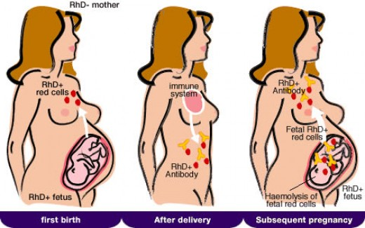 Hemolytic Disease Of The Newborn (HDN)