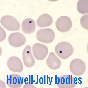 Howell-Jolly-bodies