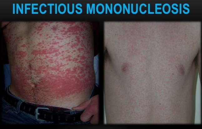 Infectious Mononucleosis-Skin Rash