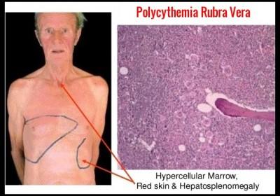 polycythemia vera jeuk