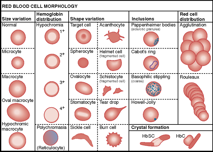 Miscellaneous Red Cell Abnormalities