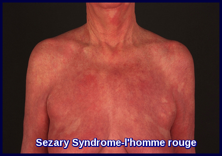 Sezary Syndrome-l'homme rouge