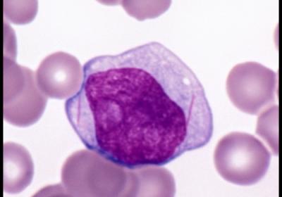 Acute Myeloid Leukemia - Auer Rods