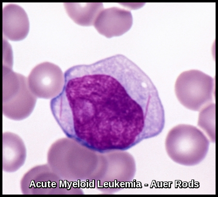 a study on leukemia Acute lymphocytic leukemia case, the student should be after reviewing the medical terminology links in the case study, the student should be able to define.