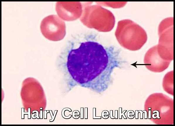 Hairy Cell Leukemia Ask Hematologist Understand Hematology