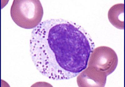 large granular lymphocytic leukemia