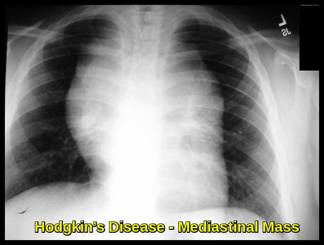 Hodgkin's Disease - Mediastinal Mass