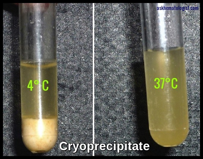 Cryoprecipitate