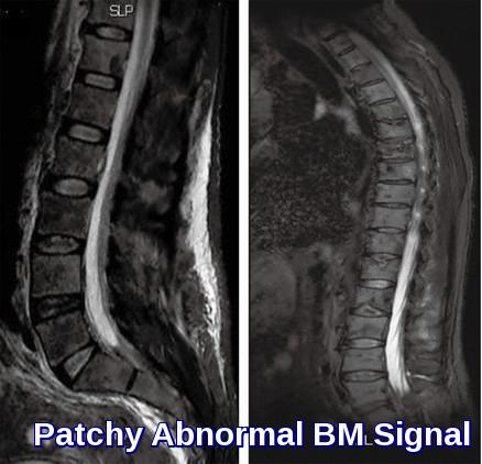 mri-abnormal-bm-signal