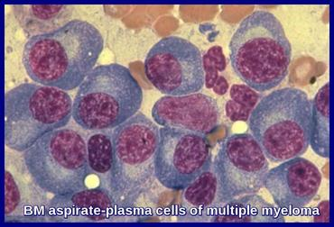BM aspirate-plasma cells of multiple myeloma