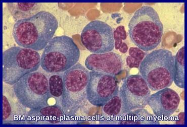 Multiple Myeloma Ask Hematologist Understand Hematology