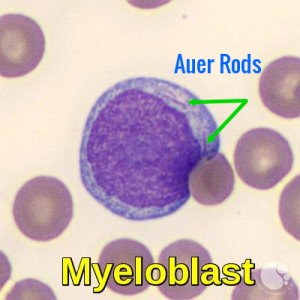 Myeloblast with Auer rods