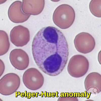 Pelger-Huet anomaly