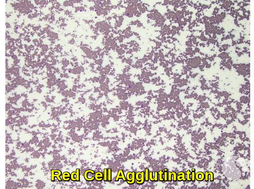 Red Cell Agglutination