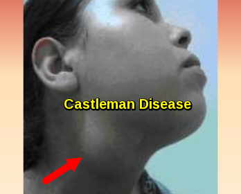 Castleman Disease - Cervical Lymphadenopathy