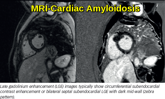 Cardiac Amyloidosis - MRI Scan