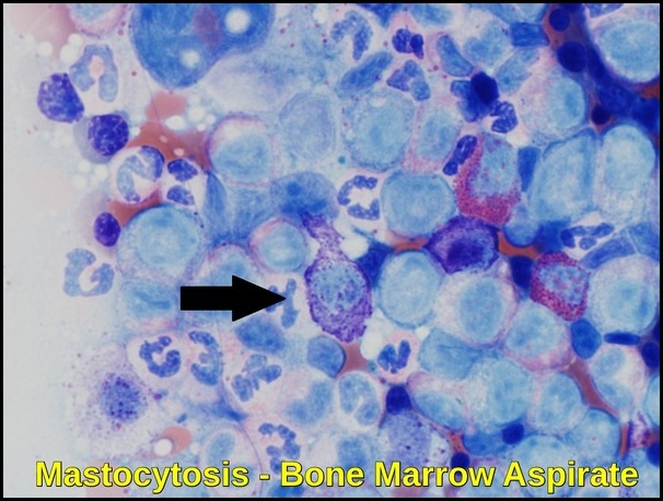 Mastocytosis - Bone Marrow Aspirate