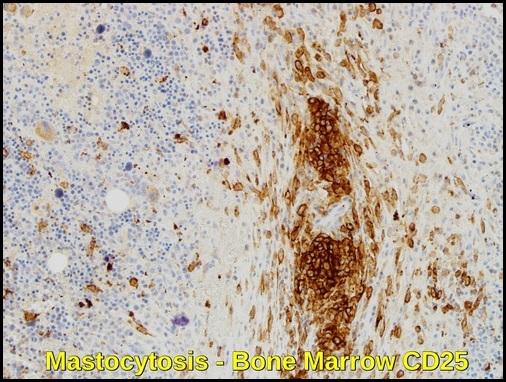 Systemic Mastocytosis