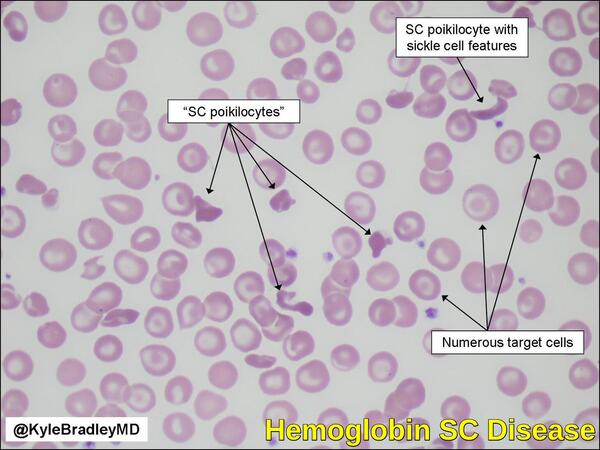 Abnormal Hemoglobins