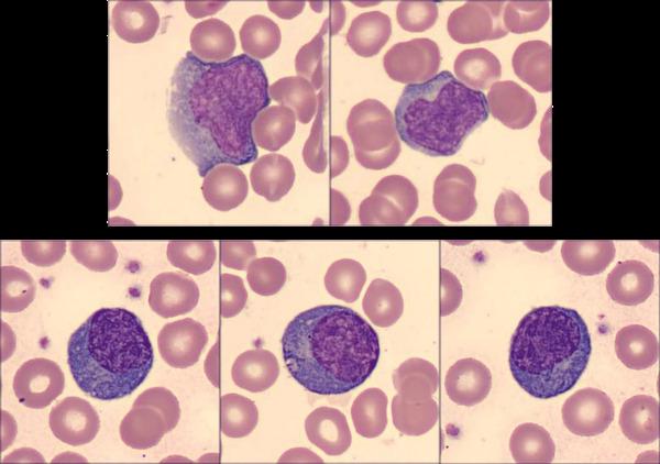 Coronavirus and Blood
