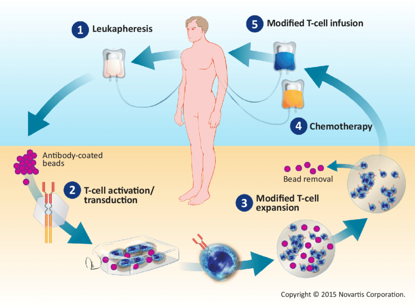 CAR-T Cell Therapy